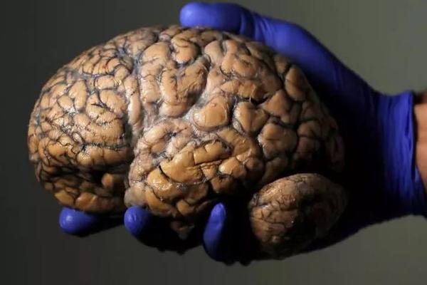 Оживление умершего мозга: ученые планируют провести уникальный эксперимент