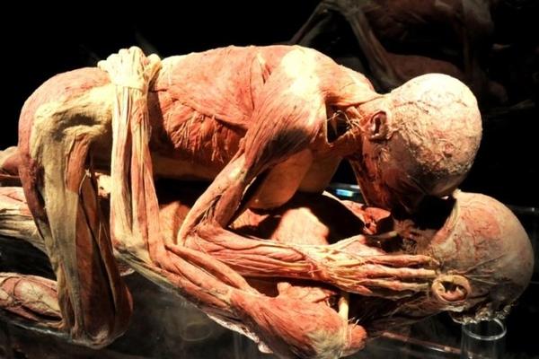 Анатом попросил расчленить его после смерти