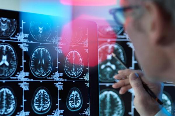 Учеными найдено средство от болезни Альцгеймера
