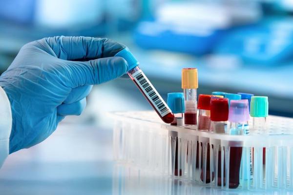 Вакцину от коронавируса планируют испытывать в апреле